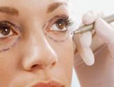 cosmetischeingreep